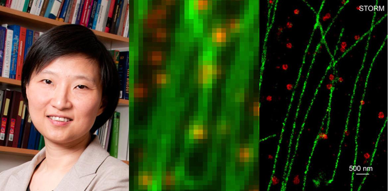 Xiaowei Zhuang vinner Lennart Nilsson Award 2017 och en jämförelse mellan STORM och konventionell mikroskopi